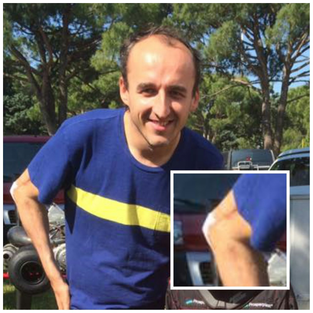 Robert Kubica - łokieć - Karting 2016